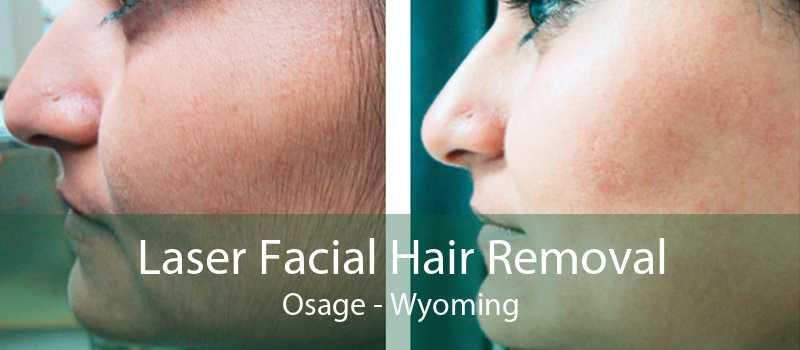 Laser Facial Hair Removal Osage - Wyoming