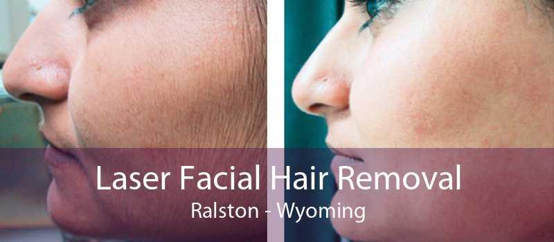 Laser Facial Hair Removal Ralston - Wyoming