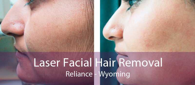 Laser Facial Hair Removal Reliance - Wyoming