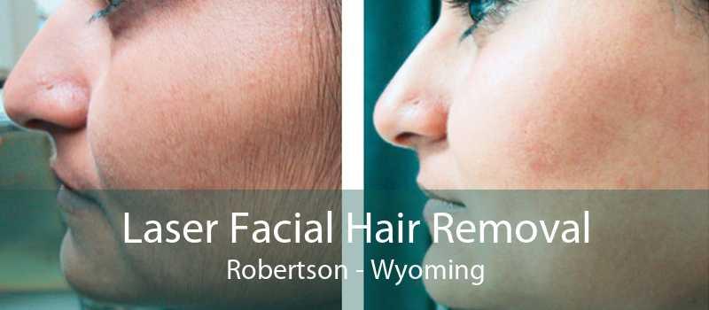 Laser Facial Hair Removal Robertson - Wyoming