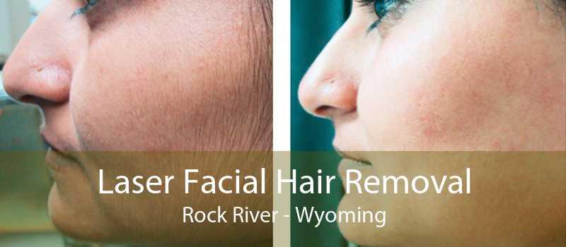 Laser Facial Hair Removal Rock River - Wyoming