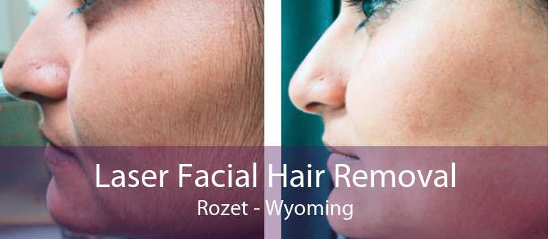 Laser Facial Hair Removal Rozet - Wyoming