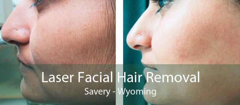 Laser Facial Hair Removal Savery - Wyoming