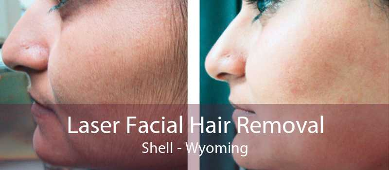 Laser Facial Hair Removal Shell - Wyoming