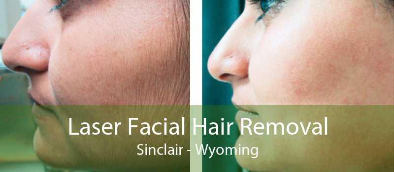 Laser Facial Hair Removal Sinclair - Wyoming