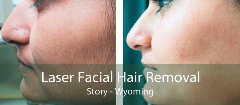 Laser Facial Hair Removal Story - Wyoming