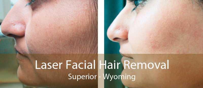 Laser Facial Hair Removal Superior - Wyoming