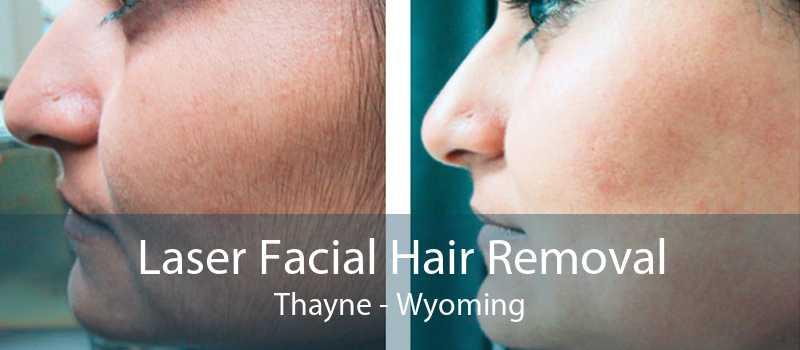 Laser Facial Hair Removal Thayne - Wyoming