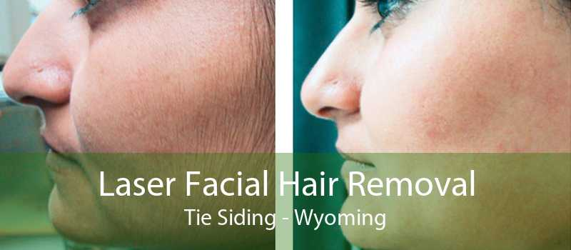 Laser Facial Hair Removal Tie Siding - Wyoming