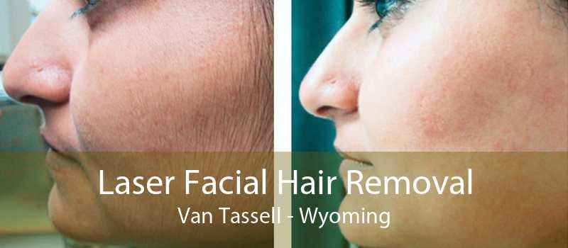 Laser Facial Hair Removal Van Tassell - Wyoming
