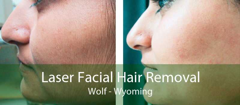 Laser Facial Hair Removal Wolf - Wyoming