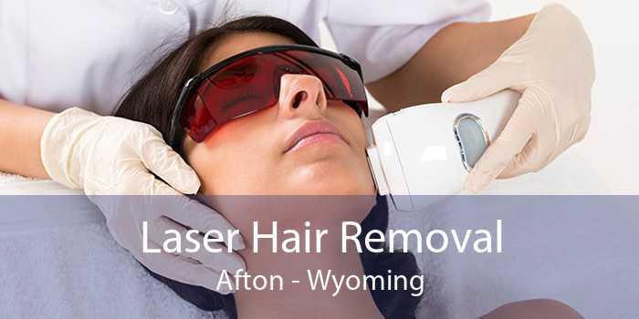 Laser Hair Removal Afton - Wyoming