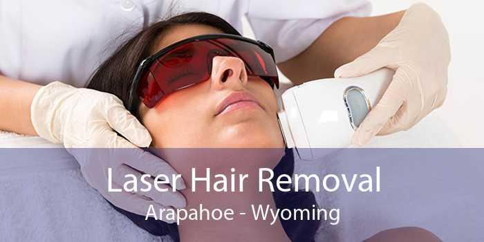 Laser Hair Removal Arapahoe - Wyoming