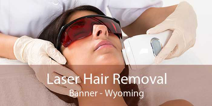 Laser Hair Removal Banner - Wyoming