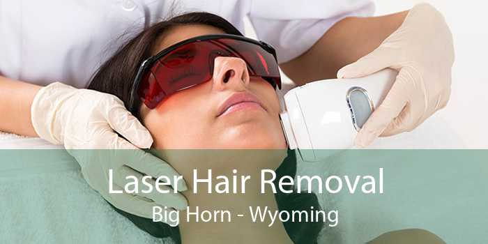 Laser Hair Removal Big Horn - Wyoming