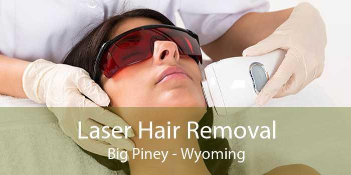 Laser Hair Removal Big Piney - Wyoming