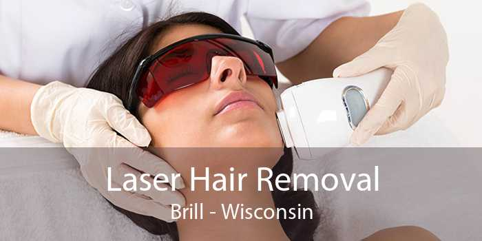 Laser Hair Removal Brill - Wisconsin