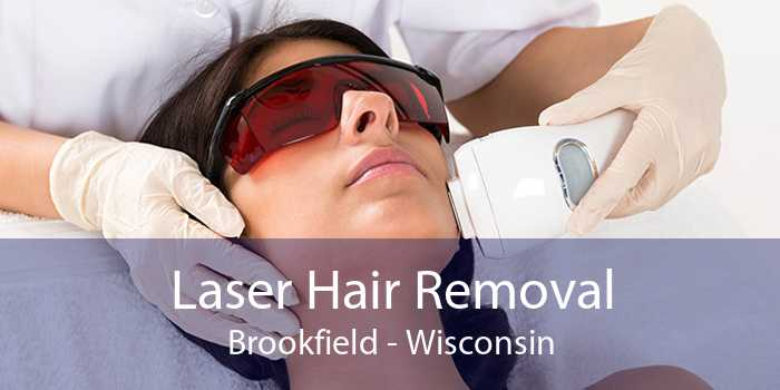 Laser Hair Removal Brookfield - Wisconsin