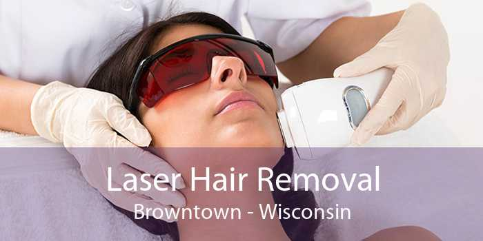 Laser Hair Removal Browntown - Wisconsin