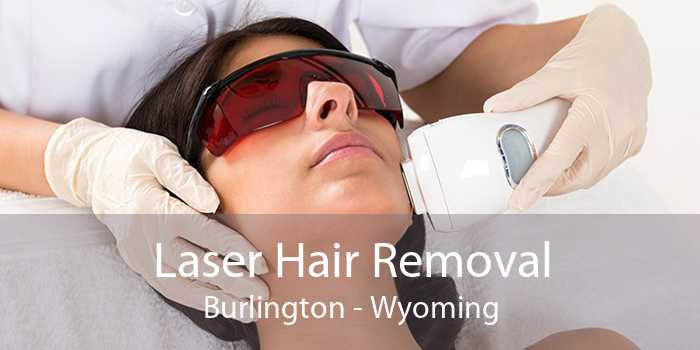 Laser Hair Removal Burlington - Wyoming