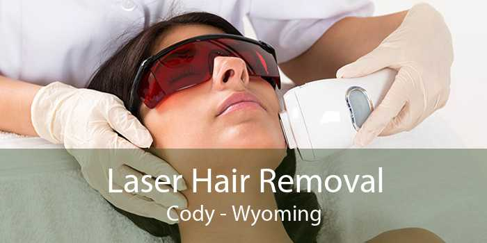 Laser Hair Removal Cody - Wyoming