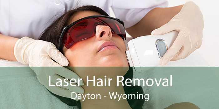 Laser Hair Removal Dayton - Wyoming