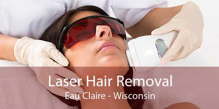 Laser Hair Removal Eau Claire - Wisconsin