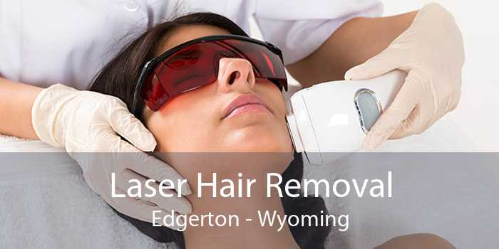 Laser Hair Removal Edgerton - Wyoming