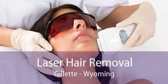 Laser Hair Removal Gillette - Wyoming