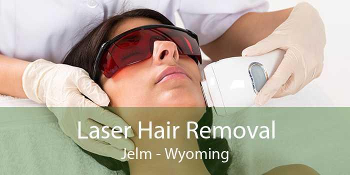 Laser Hair Removal Jelm - Wyoming