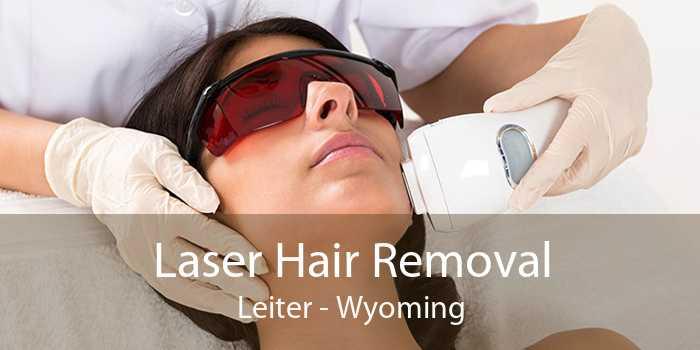 Laser Hair Removal Leiter - Wyoming
