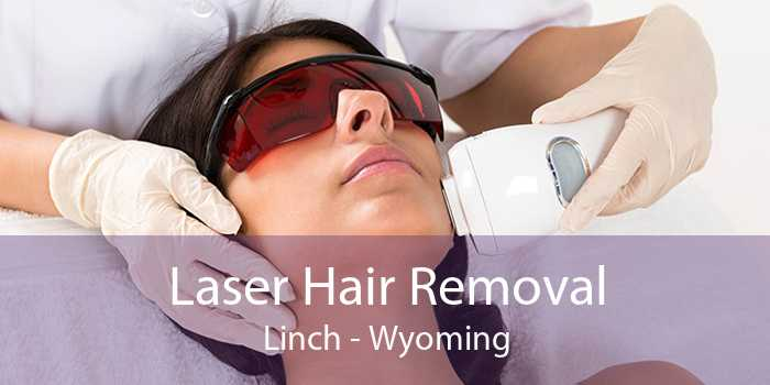 Laser Hair Removal Linch - Wyoming