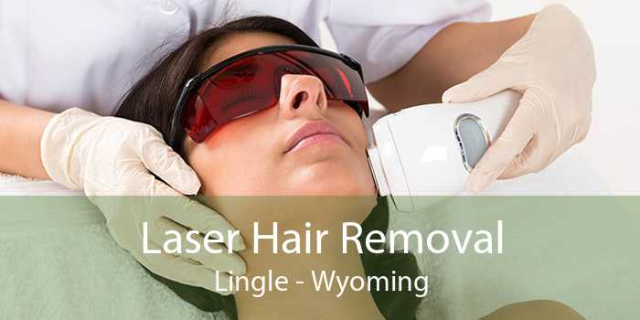 Laser Hair Removal Lingle - Wyoming