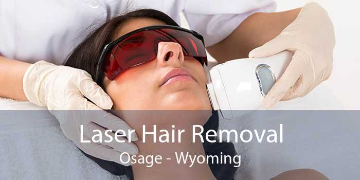 Laser Hair Removal Osage - Wyoming