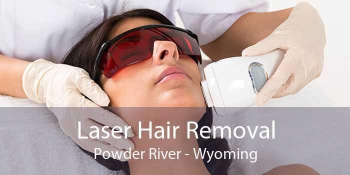 Laser Hair Removal Powder River - Wyoming