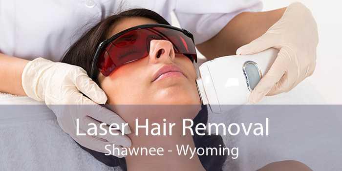 Laser Hair Removal Shawnee - Wyoming