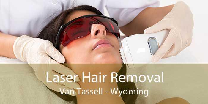 Laser Hair Removal Van Tassell - Wyoming