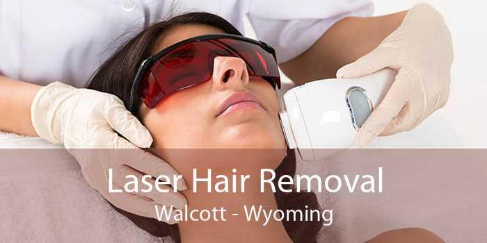 Laser Hair Removal Walcott - Wyoming