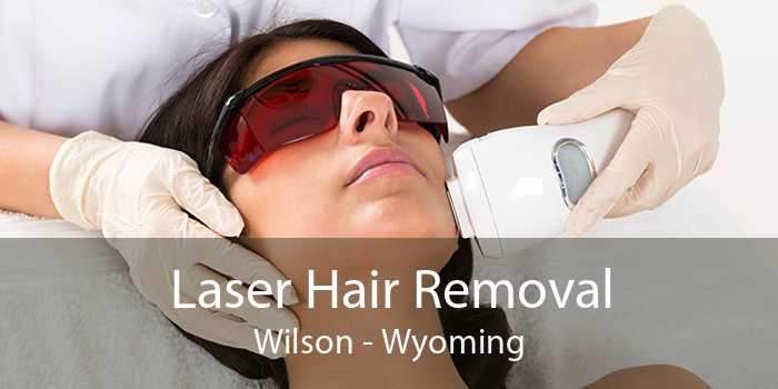 Laser Hair Removal Wilson - Wyoming