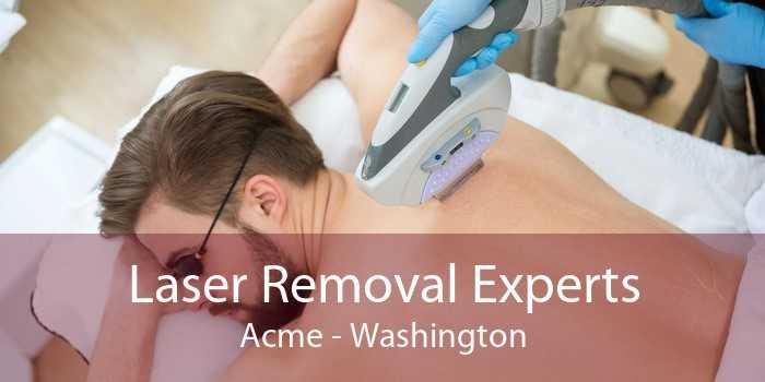 Laser Removal Experts Acme - Washington