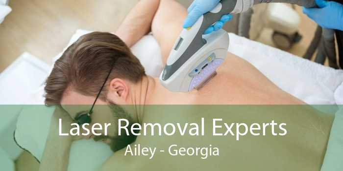 Laser Removal Experts Ailey - Georgia