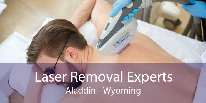 Laser Removal Experts Aladdin - Wyoming
