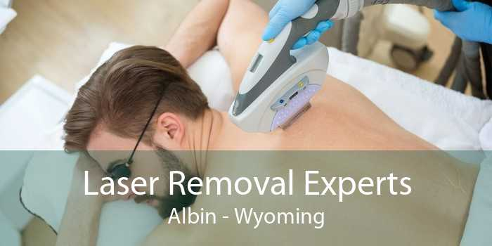 Laser Removal Experts Albin - Wyoming