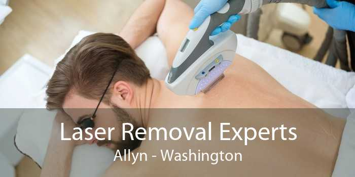 Laser Removal Experts Allyn - Washington