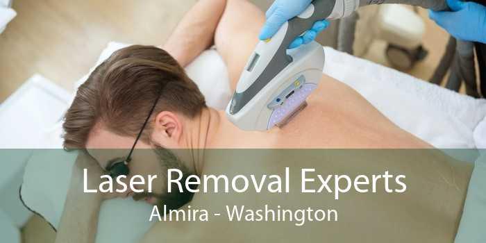 Laser Removal Experts Almira - Washington