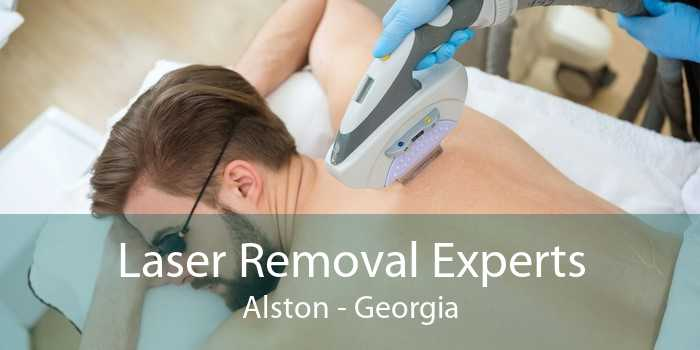 Laser Removal Experts Alston - Georgia
