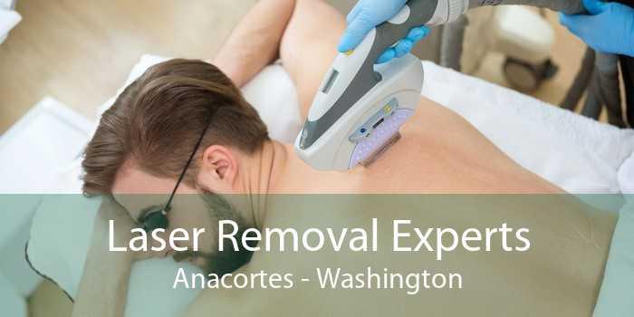 Laser Removal Experts Anacortes - Washington