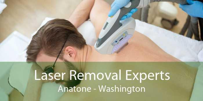 Laser Removal Experts Anatone - Washington