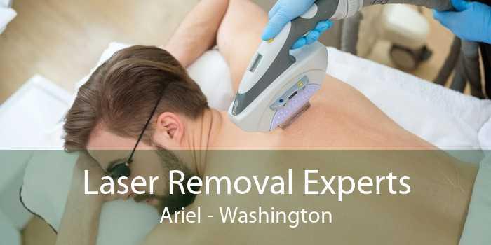 Laser Removal Experts Ariel - Washington
