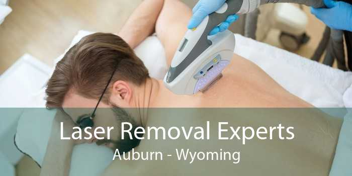Laser Removal Experts Auburn - Wyoming